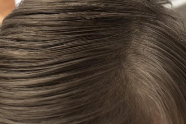 あなたのトリートメントは髪用?頭皮用?
